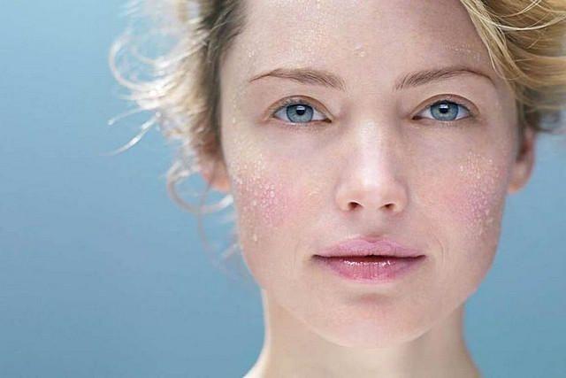 Шелушиться кожа: что делать и как решить эту проблему (рецепты эффективных масок для лица)