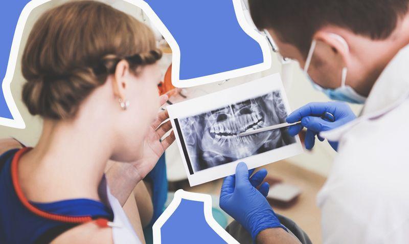 4 вопроса об имплантации зубов